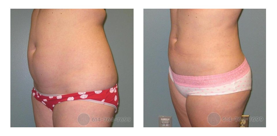 Liposuction Abdomen and Flank (Love-Handles)