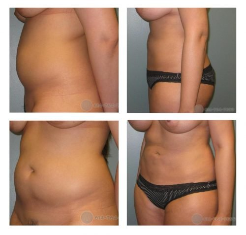 Liposuction Abdomen and Flanks (Love-Handles)