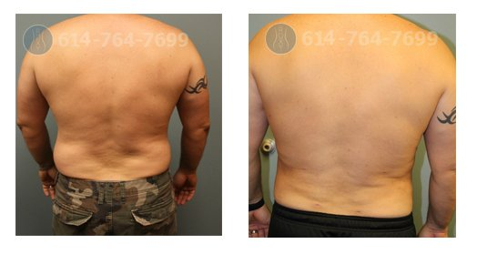 6 weeks after Liposuction of Love Handles (Flanks) – Male