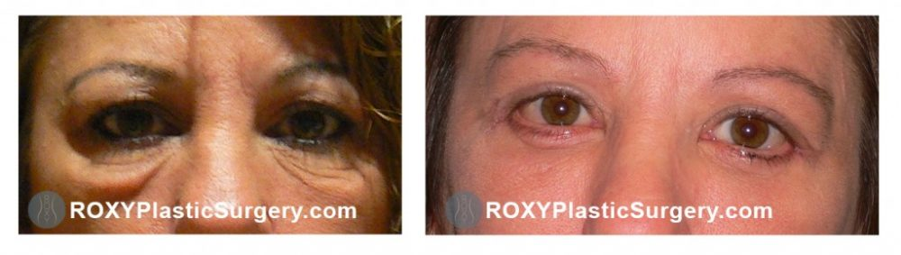 Pre and 3 weeks upper & lower blepharoplasty