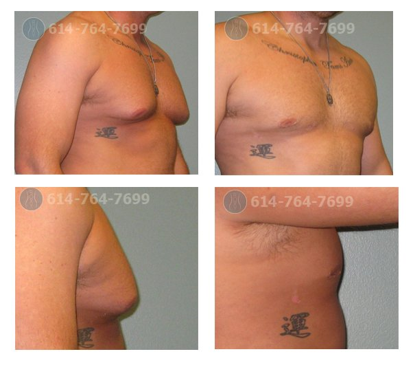 4 months after treatment of gynecomastia with gland excision and liposuction
