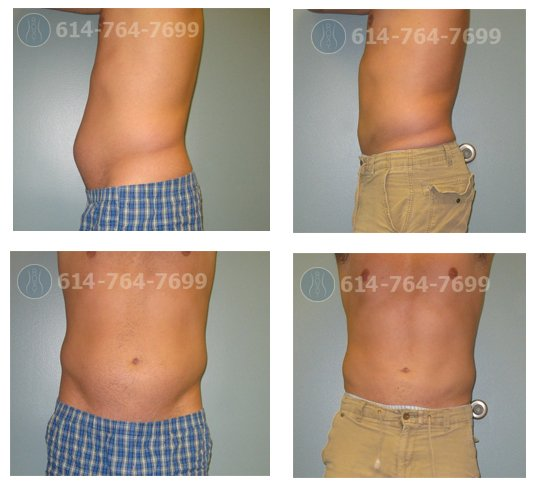 2 months after Liposuction of Lower Abdomen