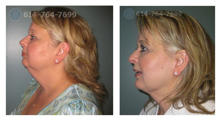 Pre & 6 Month Post Op – Mini Facelift, Chin Liposuction