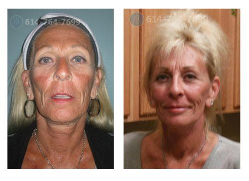 Pre & 1 Year Post-Op – Necklift, Upper Blepharoplasty, Laser Profractional Peel