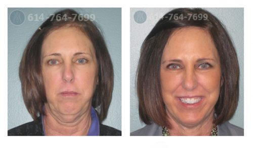 Pre & 3 Month Post Op – Facelift, Upper Blepharoplasty