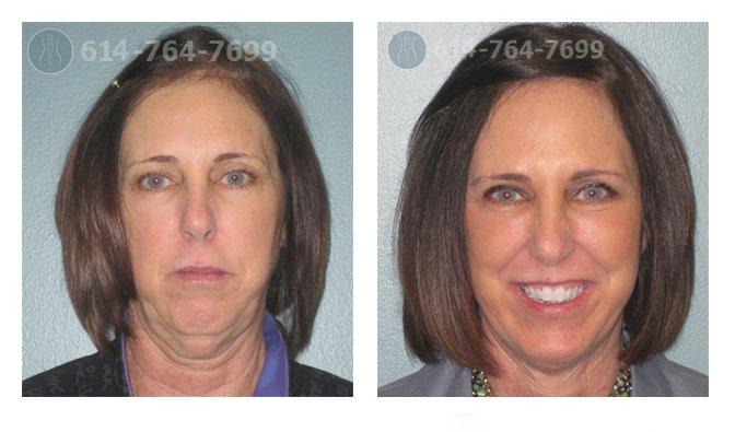 Pre & 3 Month Post Op – Facelift, Upper Blepharoplasty
