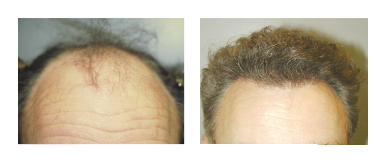 Roxy Plastic Surgery - Hair Restoration
