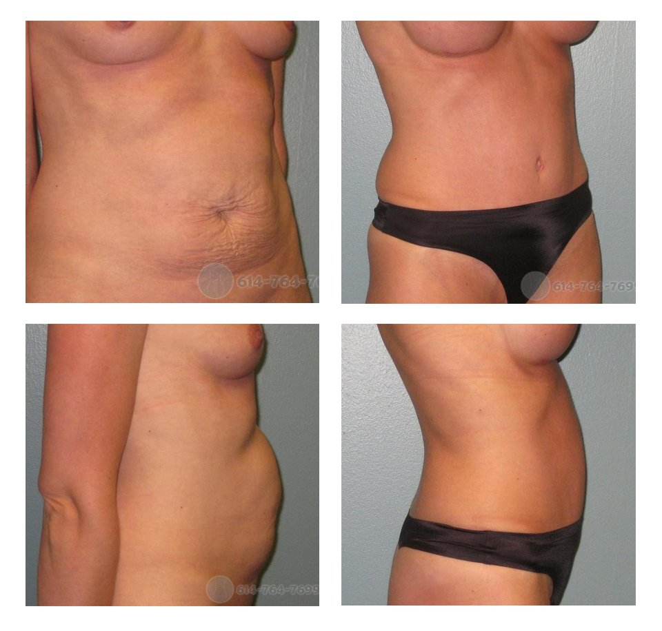 Before and 3 months after Abdominoplasty