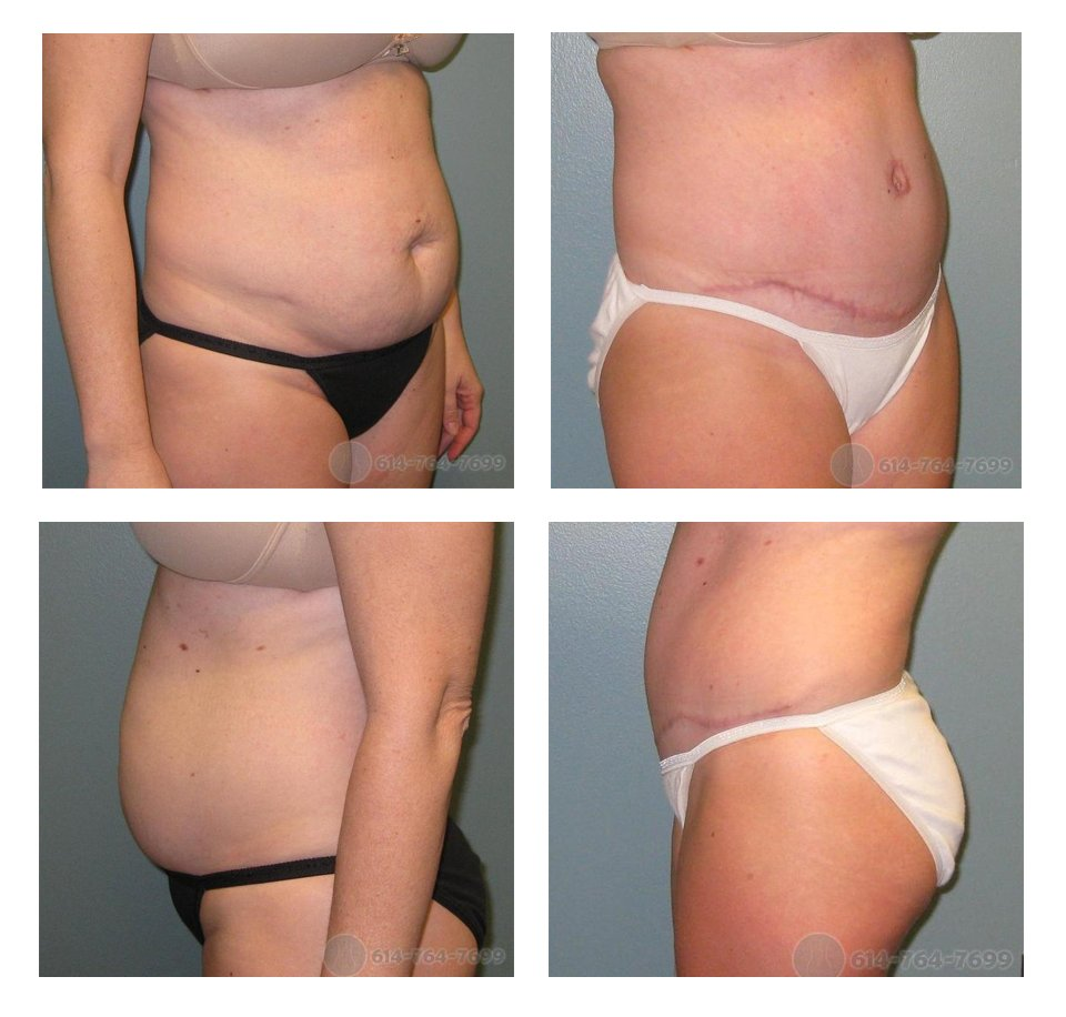Before and 5 months after Abdominoplasty