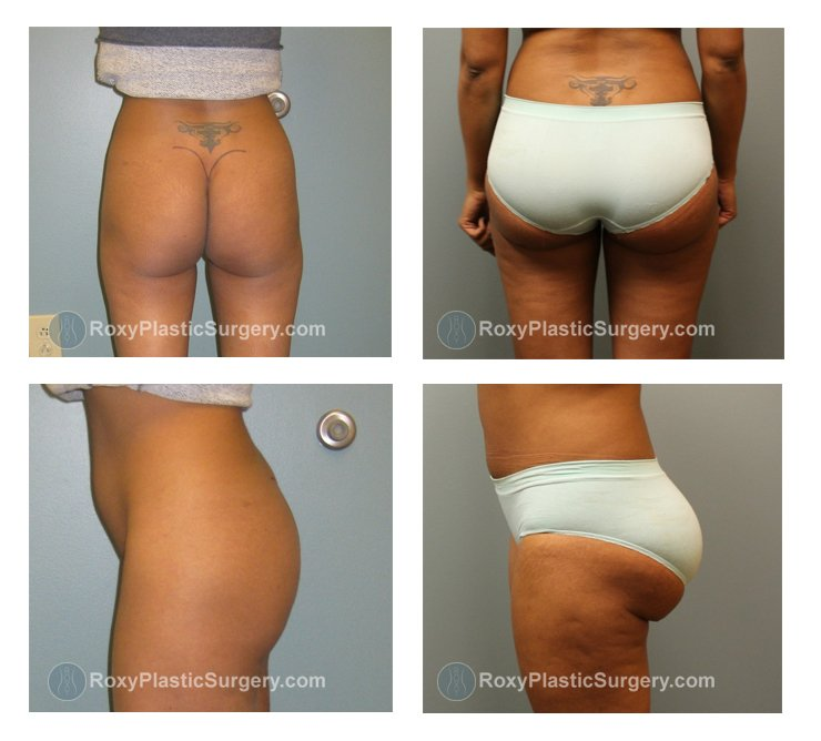 Brazilian Butt Lift - Liposuction abdomen, flanks, thighs - Pre & 2 Weeks Post Op  - Fat Grafted: 550 cc per buttock