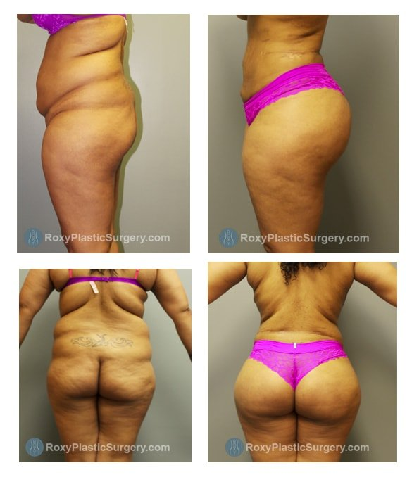 Brazilian Butt Lift - Liposuction 360  - Pre & 3 Months Post Op  - Fat grafted: 650 cc per buttock, 150 cc per hip