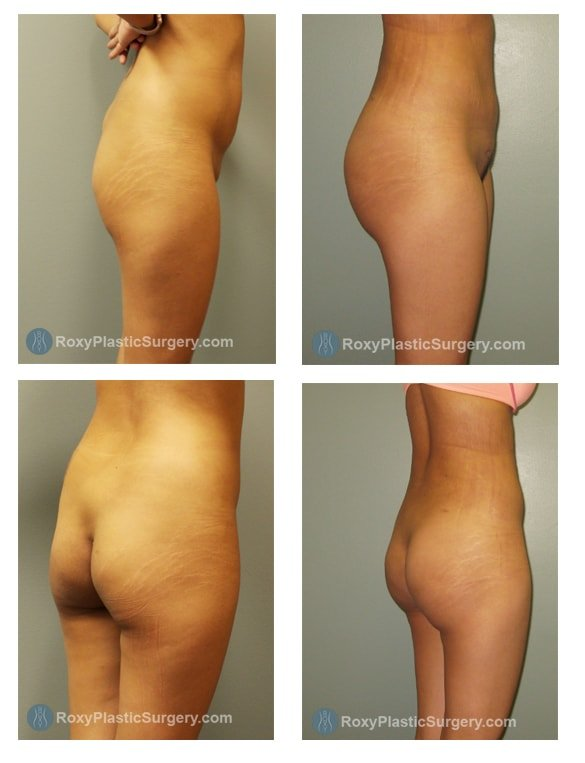 Brazilian Butt Lift - Liposuction Abdomen & Flanks  - Pre & 5 Weeks Post Op  - Fat grafted: 360 cc per buttock