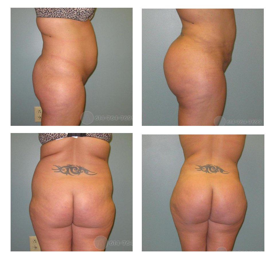 Before and 6 weeks after Brazilian Buttock Lift  - 910 cc fat injected into each side