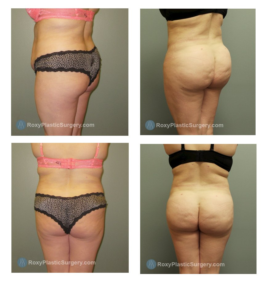 ohio-buttock-augmentation-surgeons-before-after-10095