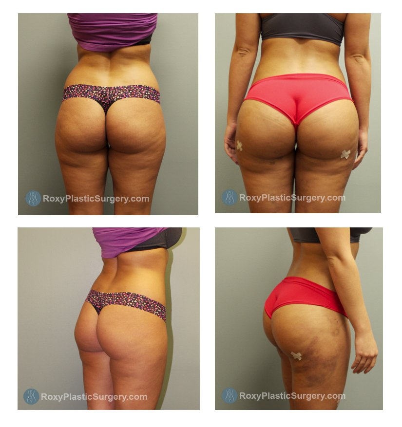 ohio-buttock-augmentation-surgeons-before-after-10096