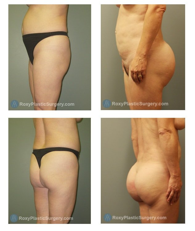 Brazlian Butt Lift -  Liposuction Abdomen & Flanks  - Pre & 6 Months Post Op  - Fat grafted: Right side: 1000 cc, Left side: 1020 cc