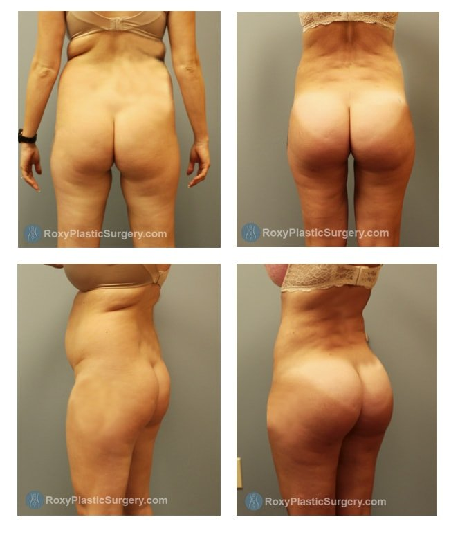 Brazilian Butt Lift -  Liposuction Abdomen & Flanks  - Pre & 3 Months Post Op  - Fat grafted: 550 cc per buttock