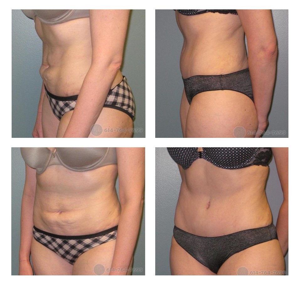 Before and 8 months after Abdominoplasty