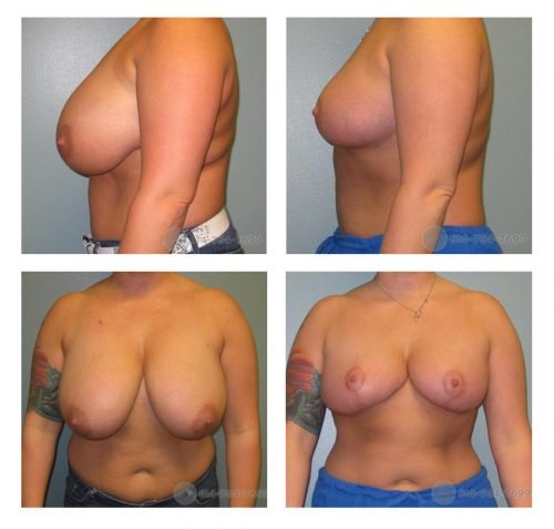 Before and 2 months after Breast Reduction - 600 grams removed from each side