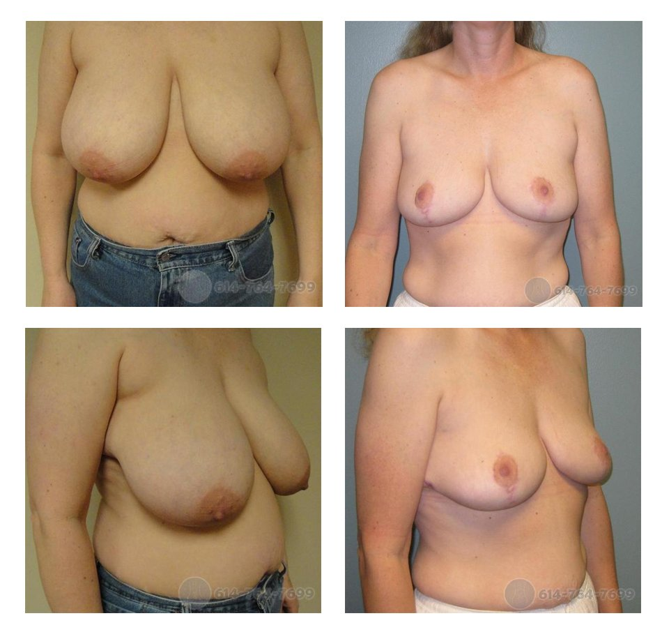 Before and 6 months after Breast Reduction   - 700 grams removed from each side