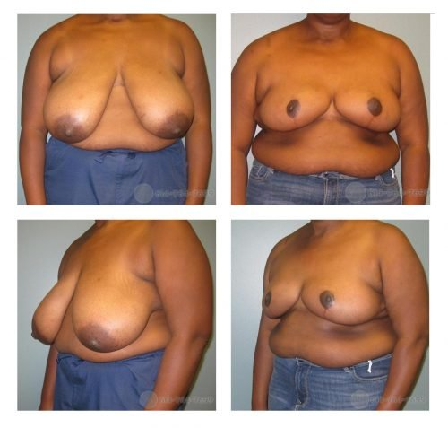 Before and 6 months after Breast Reduction  - 935 grams removed from each side