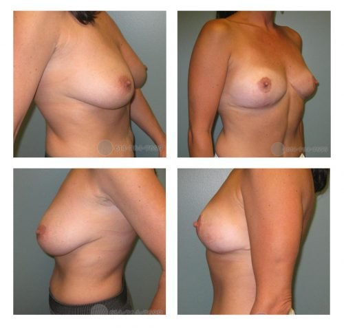 Before and 5 months after Breast Reduction - Removed 81 grams from Right & 126 grams from Left