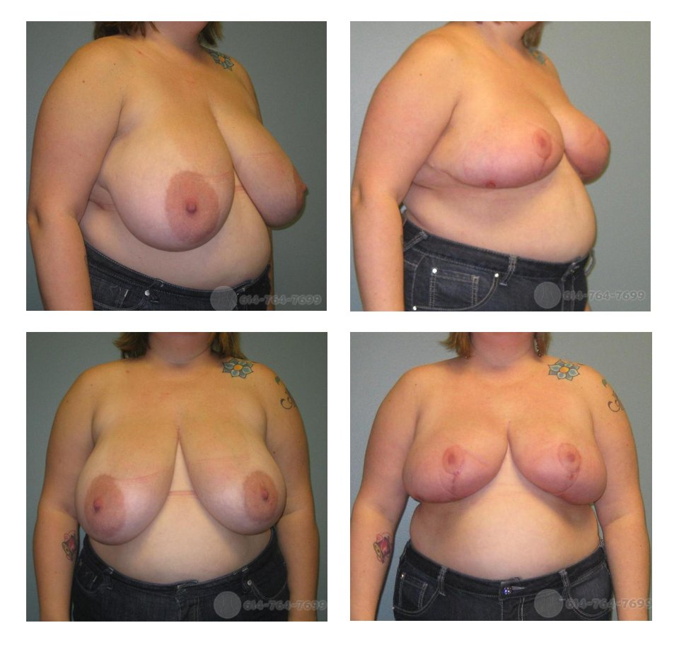 Before and 3 months after Breast Reduction - 800 grams removed from each side