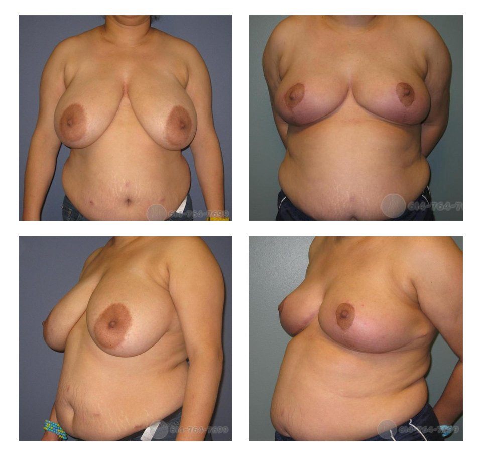 Before and 4 months after Breast Reduction - 700 grams removed from right side & 750 grams from left side