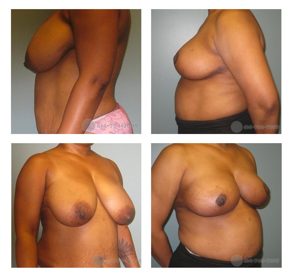 Before and 3 months after Breast Reduction  - 400 grams removed from the right side & 500 grams from the left