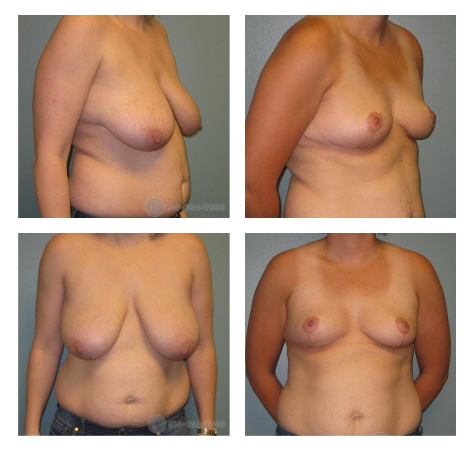 Before and 3 months after Breast Reduction  - 490 grams removed from each side