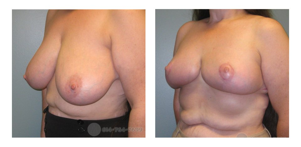 Pre and 3 months after Breast Reduction  - Pre-op Breast Asymmetry:  500 grams removed from the Right Side - 700 grams removed from the Left side