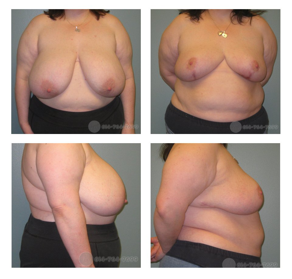 Pre op and 6 months after Breast Reduction  - 750 grams removed from each side