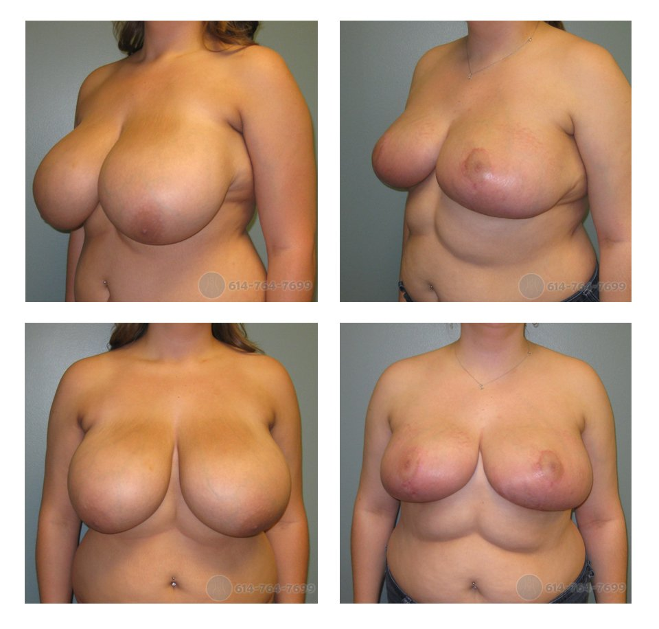 Pre op and 3 months after Breast Reduction - 575 grams removed each side