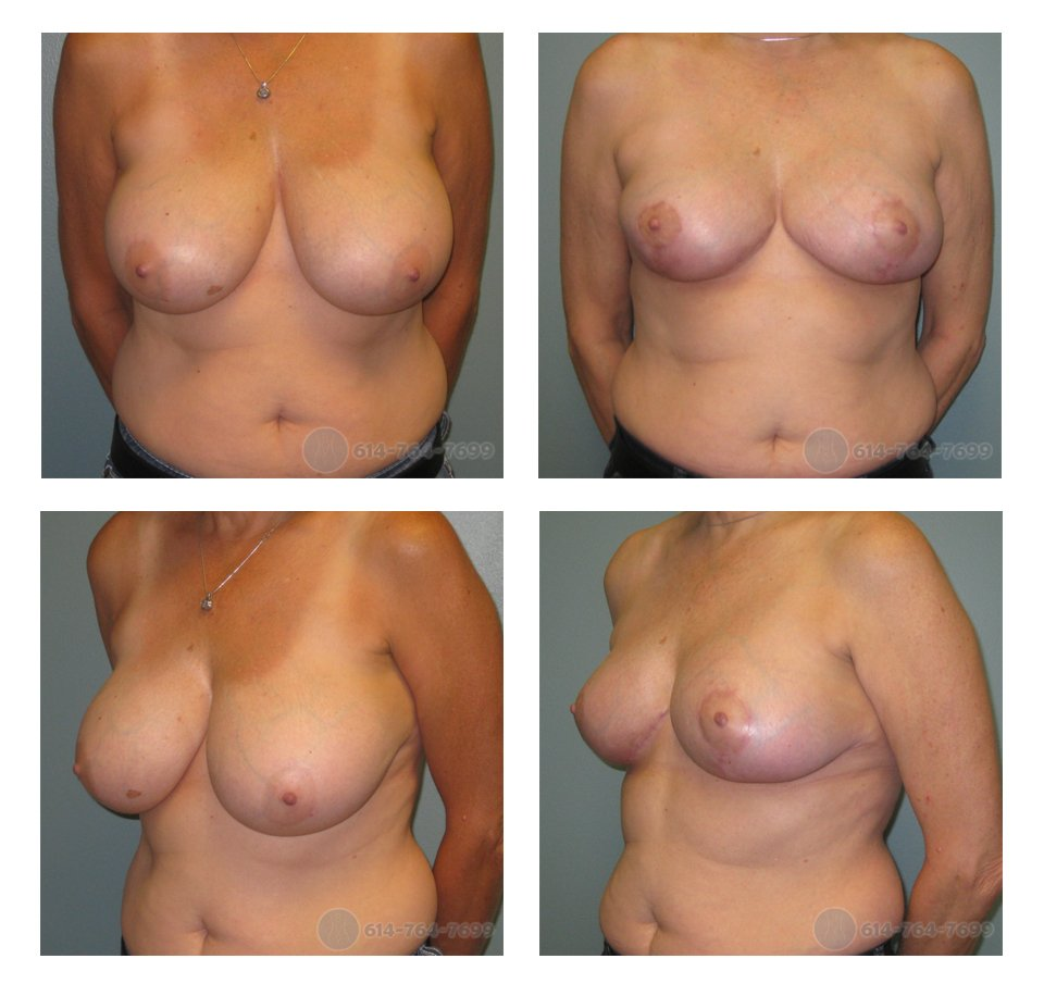 Pre op and 3 months after Breast Reduction  - Pre-op Breast Asymmetry:  350 grams removed from the Right Side - 452 grams removed from the Left Side.
