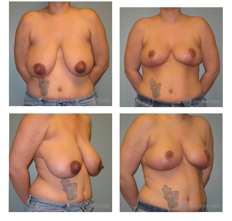 Pre op and 2 months after Breast Reduction  - 450 grams removed each side