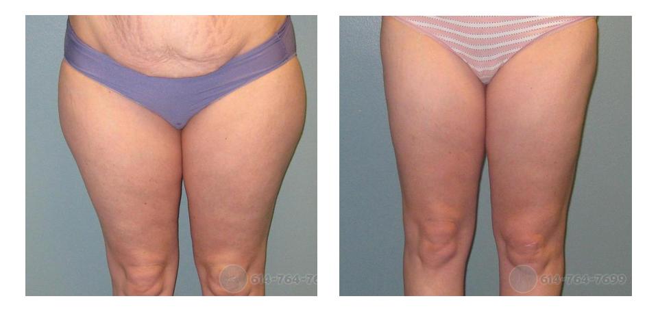 Roxy Plastic Surgery - Liposuction