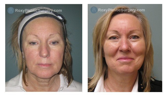 1 month post op Liquid Facelift