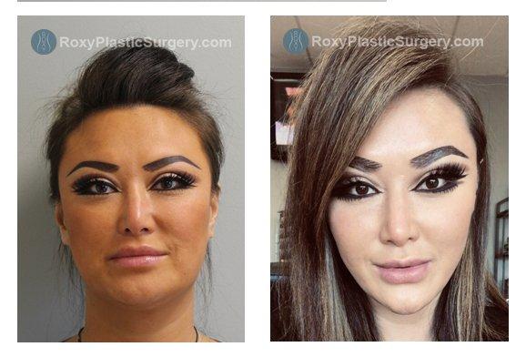 1 month post Liquid Facelift/facial slimming