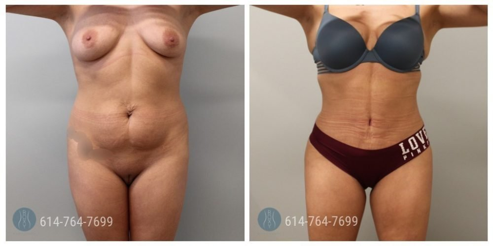 Post Op Photo: 6 week Post Tummy Tuck and Liposuction of Flanks and Upper Back