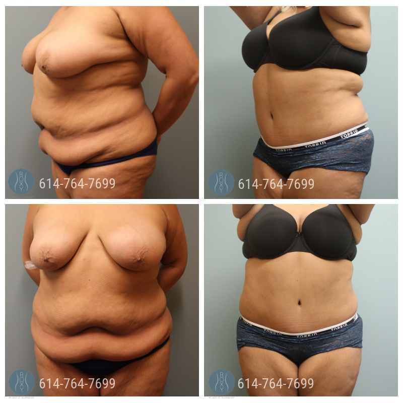 Post Op Photo: 6 mo Post Tummy Tuck