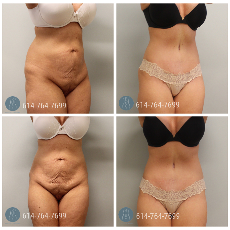 Post Op Photo: 3 mo Post Tummy Tuck and Liposuction of Flanks