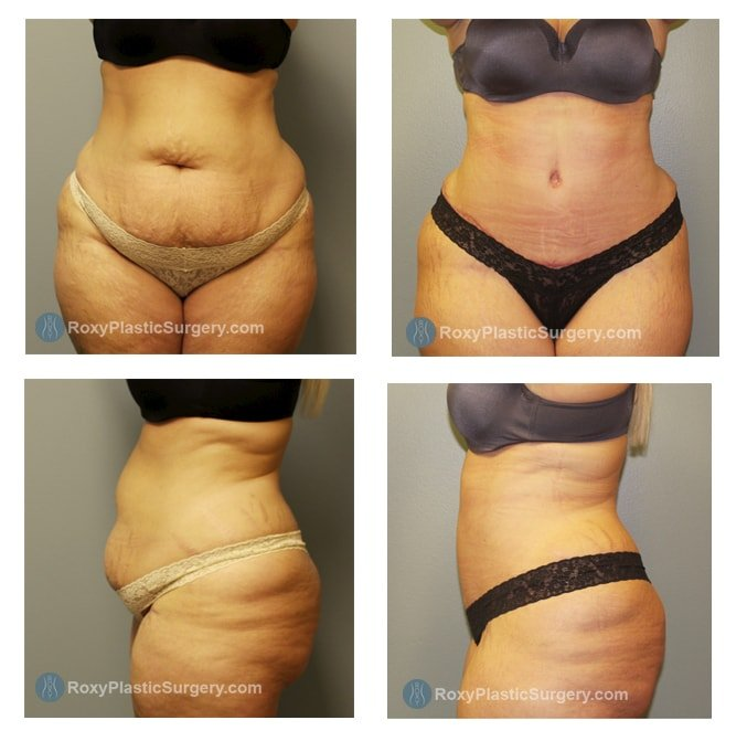 Before and 6 weeks after Abdominoplasty