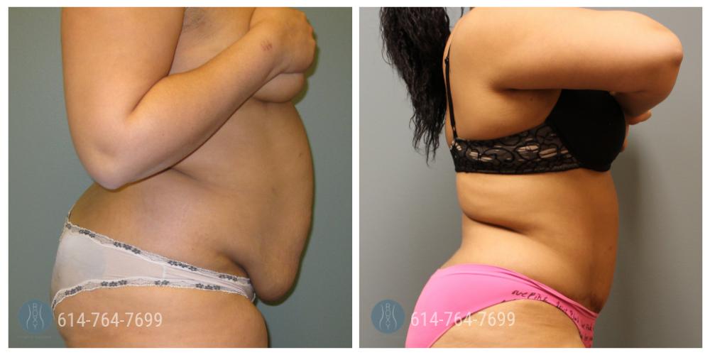 Post Op Photo: 1 year Post Tummy Tuck