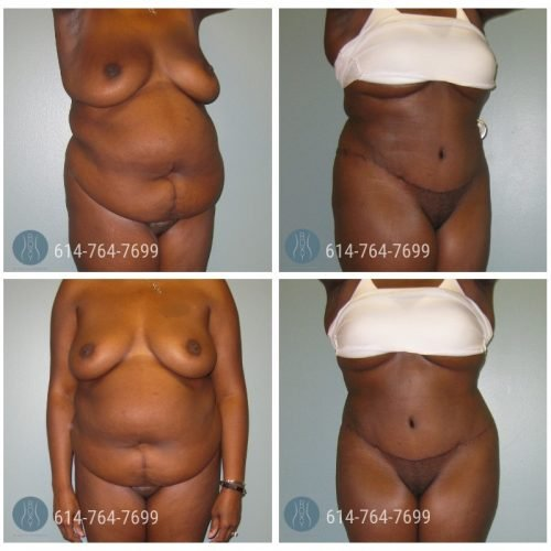Post Op Photo: 6 mo Post Tummy Tuck and Liposuction