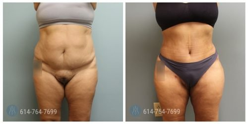 Post Op Photo: 6 weeks Post Tummy Tuck and Liposuction of the Flanks