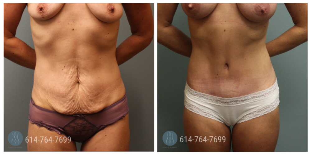 Post Op Photo: 3 mo Post Tummy Tuck