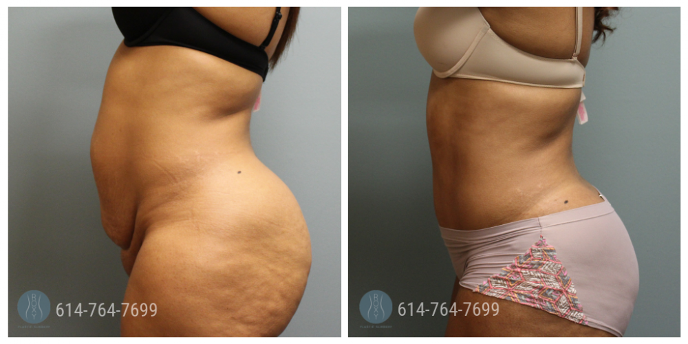 Post Op Photo: 6 weeks Post Tummy Tuck