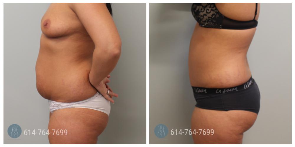 Post Op Photo: 6 weeks Post Tummy Tuck