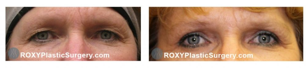 Roxy Plastic Surgery - Blepharoplasty