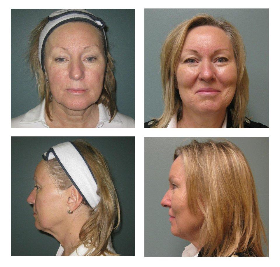 Roxy Plastic Surgery - Volbella